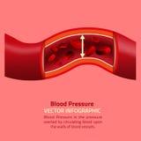 血压Infographic 库存图片
