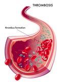 血栓形成 库存图片