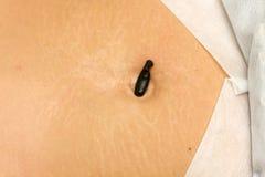 血液水蛭胃吮 库存图片