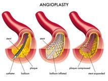 血管成形术 库存图片