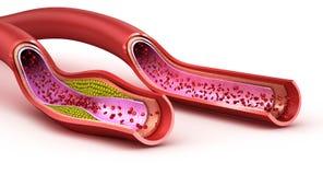血管:法线和胆固醇损坏的船 库存例证