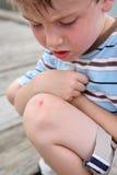 被刮的膝盖 免版税库存图片