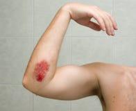 被刮的1手肘 图库摄影