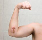 被刮的3 9事故日手肘 免版税库存图片