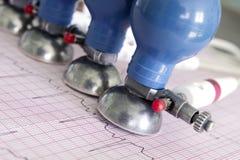 被打印的心电图和ECG电极 免版税库存图片