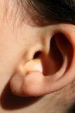 被扭屈的耳朵 耳廓的反常发展 整容手术和整容术 库存照片