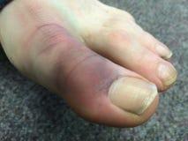 被挫伤的大脚趾男性 免版税图库摄影