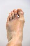 被挫伤的脚 库存照片