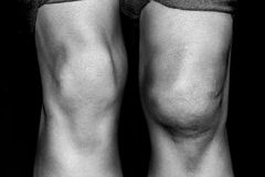 被撕毁的脱臼膝盖中间膝盖骨发生 免版税库存图片