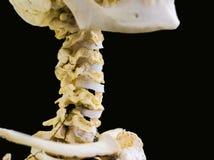 被明确表达的颈椎去骨显示人的脖子解剖学在与空间的被隔绝的黑背景文本的 免版税库存照片