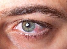 被激怒的红色眼充血 免版税图库摄影