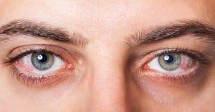 被激怒的红色眼充血 库存照片