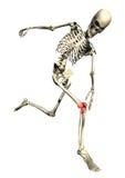 被激起的膝盖连续概要痛处 皇族释放例证