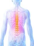 被突出的脊椎 免版税库存图片