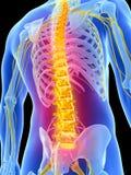 被突出的腰疼 向量例证