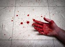 被谋杀的血淋淋的手 图库摄影