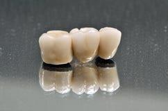 被隔绝的瓷牙齿冠 图库摄影