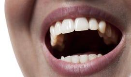 装腔作势地说微笑的牙妇女 免版税库存照片
