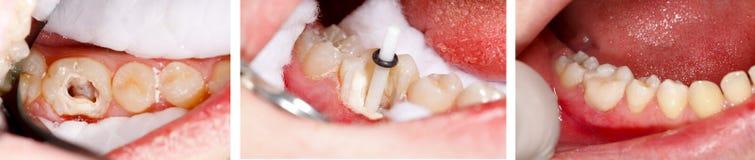 装载由牙科医生的牙 库存照片