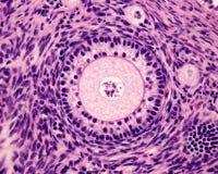 主要卵巢滤泡 库存图片