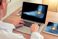 观看一台膝上型计算机和一种数字片剂有镇痛X-射线的医生在一只脚的脚腕在一个医疗办公室 免版税库存图片