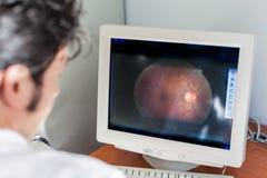 视网膜 免版税库存照片