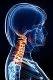 解剖学女性脖子痛 免版税图库摄影