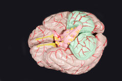 解剖学脑子人 免版税库存照片