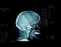 计算机辅助测试扫描头骨 免版税库存照片