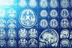 计算机顶头X线体层照相术、X-射线脑子或者短桨扫描图象,蓝色光线影响,神经学 免版税图库摄影