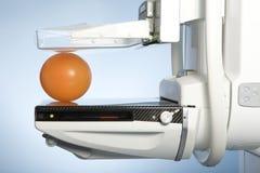 设备早期胸部肿瘤Ⅹ射线测定法 库存图片