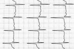 证明心脏的电子活动的心电图试验 库存照片