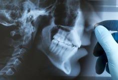 评估X-射线 免版税库存照片