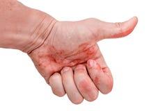象在血液弄脏的手 在空白背景 库存图片