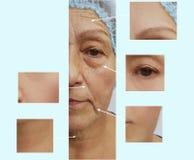 起皱纹年长妇女面孔作用举的回复更正在防皱化妆做法前后 库存照片