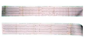 超声心动图读书轴图, ECG, EKG 免版税库存照片