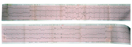 超声心动图(ECG, EKG)心脏读书 免版税库存照片