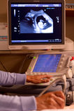 超声波扫描 库存照片