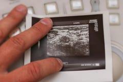 超声波照片-在乳腺癌的变形的淋巴结 库存照片
