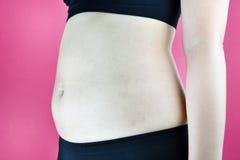 超重肥胖妇女,有过份腹部油脂的中年妇女 库存照片