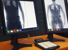 身体扫描器 机场 库存图片