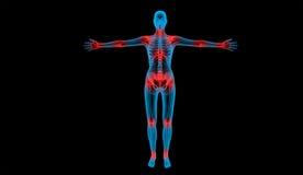 身体联接痛苦的光芒x 库存例证