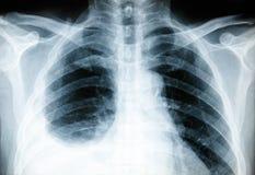 身体X-射线 库存照片