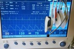 辅助部件停止监控程序在患者 库存照片