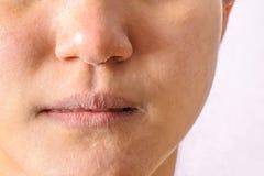 过敏妇女有湿疹干燥鼻子,并且嘴唇在冬天晒干特写镜头 库存图片