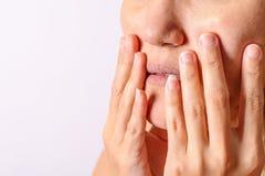 过敏妇女有湿疹干燥鼻子,并且嘴唇在冬天晒干特写镜头 免版税库存照片