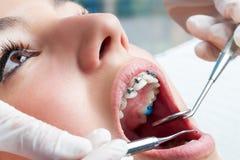 运转在牙齿括号的牙医手 库存图片