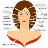 透明质酸Asid Infographic 面孔整容手术 库存照片
