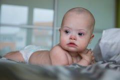 逗人喜爱的男婴画象有唐氏综合症的 免版税图库摄影