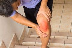 遭受深刻膝盖关节痛苦上升的台阶的成熟的人 免版税库存照片